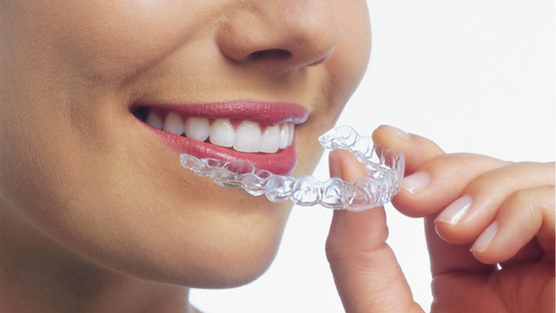 Woman uses Invisalign® braces. Step1