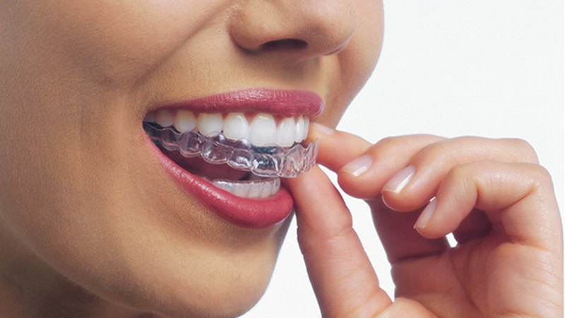 Woman uses Invisalign® braces. Step2