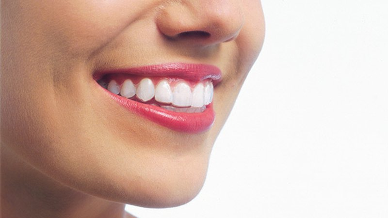 Woman uses Invisalign® braces. Step3