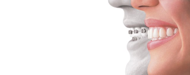 Invisalign® for Adults – Why This Treatment is The Best Choice for Any Age